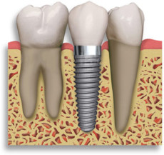 implant-retained-crown